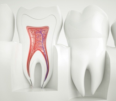 animated tooth before root canal