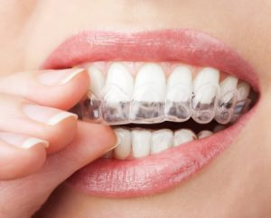 Woman using Invisalign bowie residents rely on