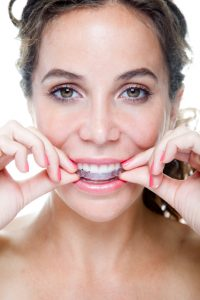 A complete guide to caring for your Bowie Invisalign braces.