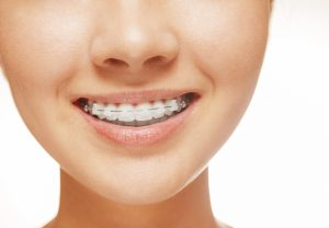 Six Month Smiles in Bowie fixes crooked or gapped teeth. Ambiance Dental Spa uses clear brackets and tooth-colored wires for quick smile improvement.