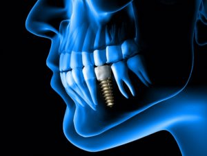 digital dental implant